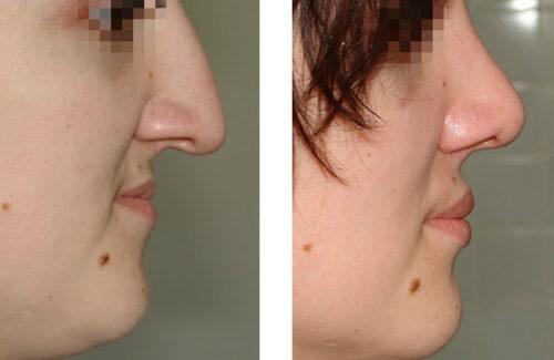 Ринопластика: пластика носа
