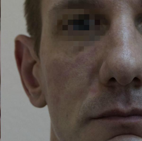удаление новообразований на коже лазером