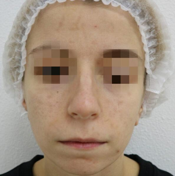 удаление новообразований кожи киев 1