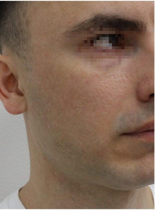 Фракционная шлифовка лица