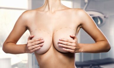 Подтяжка груди в Киеве от клиники Platinum Laser