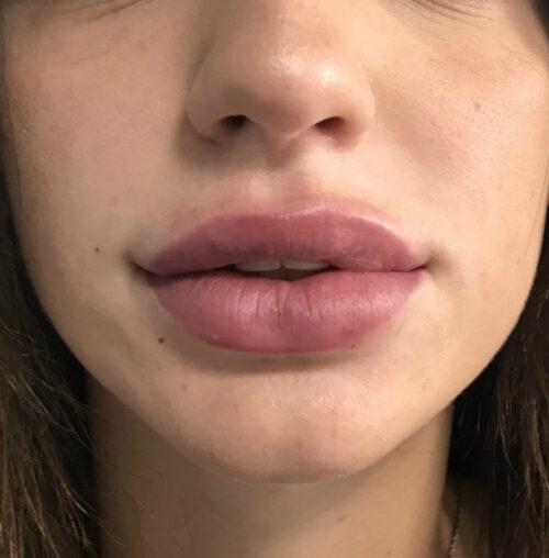Контурна пластика губ