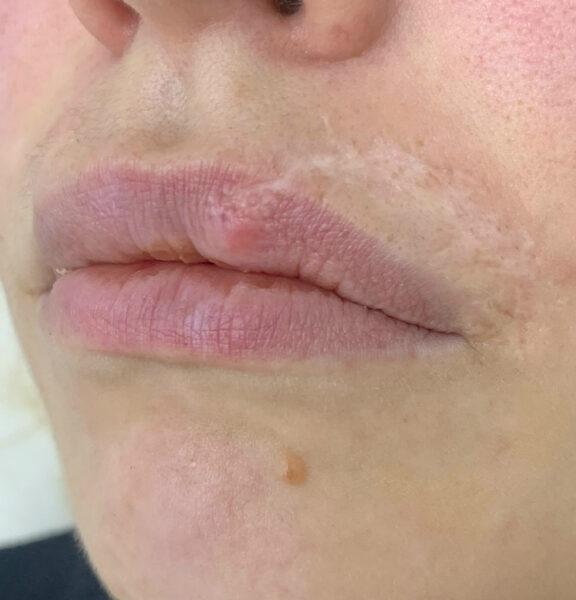 лечение рубцов голд лазер 2