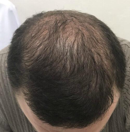 Пересадка волос методом FUE и HFE