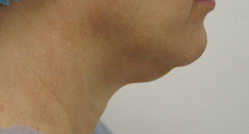 Лазерная липосакция шеи