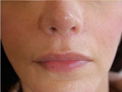 Хейлопластика: пластика губ