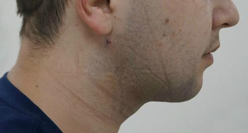 лазерная липосакция лица